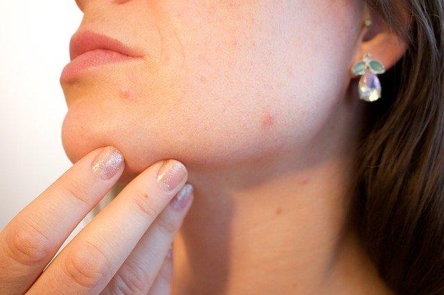 un primo piano di mezzo volto di un adonna con problemi di acne