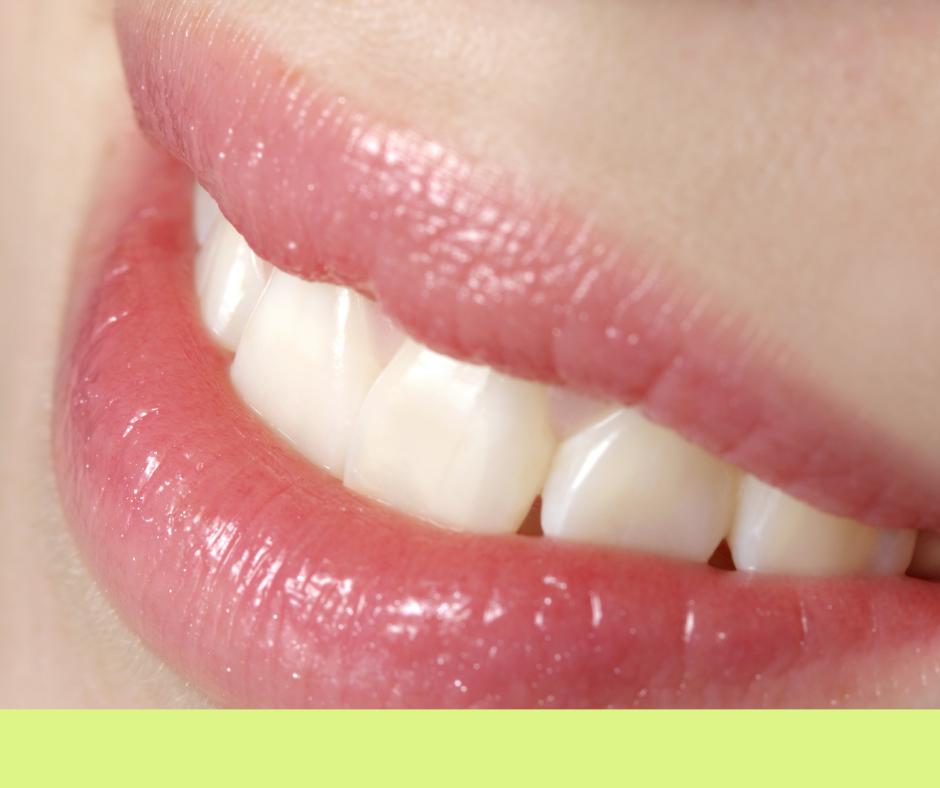 Traumi dentali sorriso